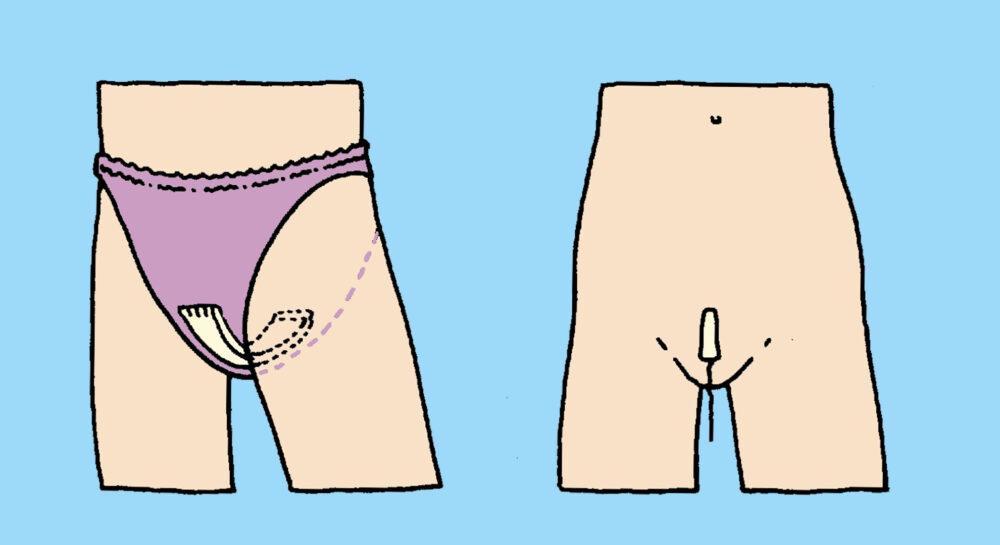 maandverband en tampon